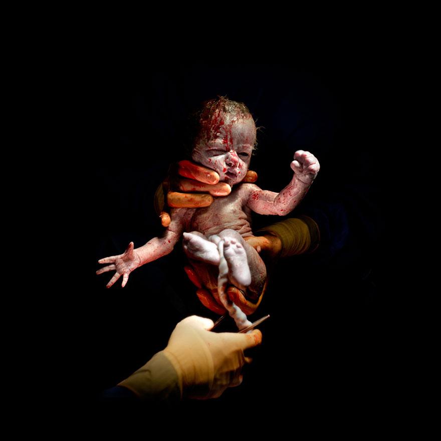 novorozene-1