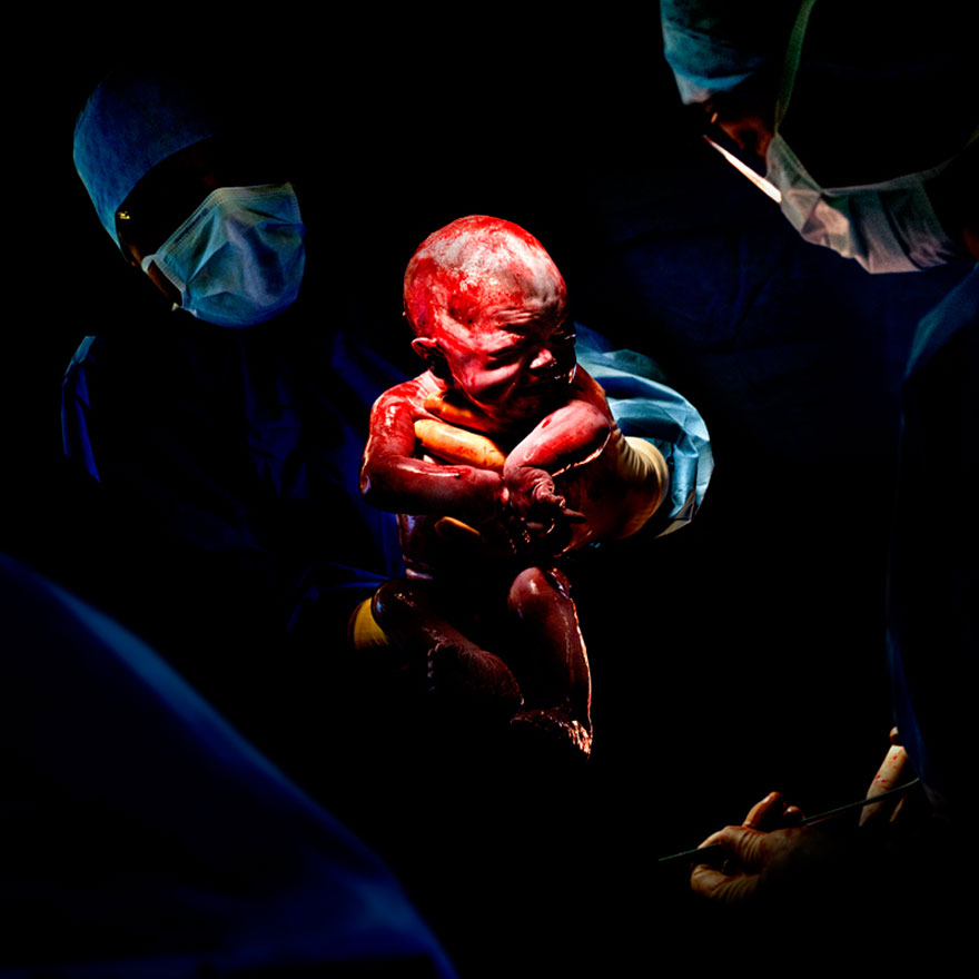 novorozene-8