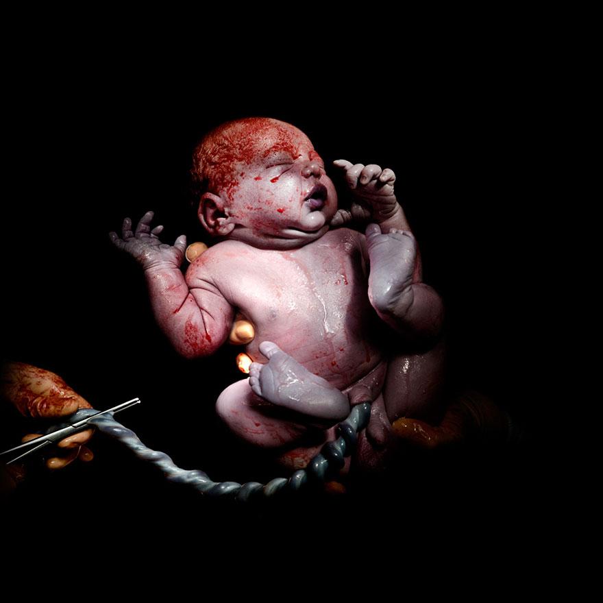 novorozene-4